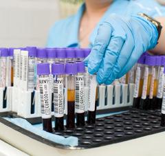 пробирки крови на биохимический анализ