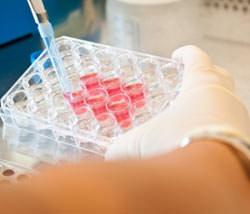 биохимическое исследование крови