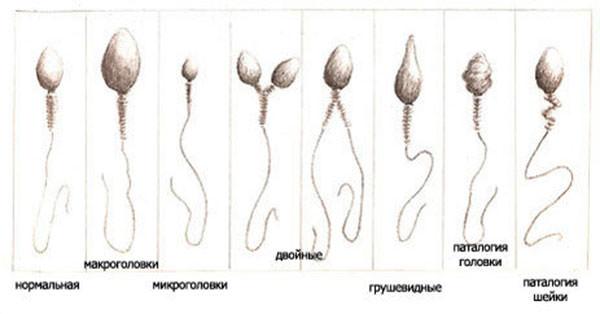 Оценка морфологии сперматозоидов (по Крюгеру)
