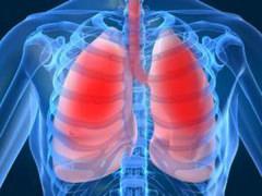 Туберкулез - легкие