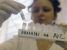 анализы на ВИЧ в руках у лаборанта