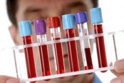 Общий анализ крови на вирус Эпштейна Барр