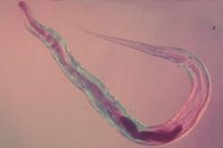 analiz-na-enterobioz