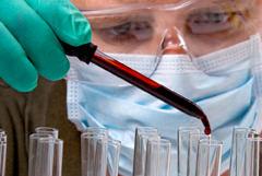 МНО анализ крови
