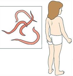 Схема лечения от лямблий у детей
