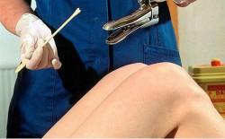 Диагностика и лечение недугов цервикального канала предусматривает применение выскабливания