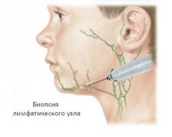 биопсия лимфоузла