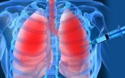 биопсия легких