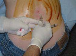 В месте пункции может быть некоторое кровотечение.